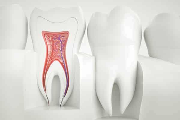 Wurzelbehandlung Zahn